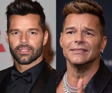 El rostro de Ricky Martin: La verdad detrás de los supuestos arreglos estéticos