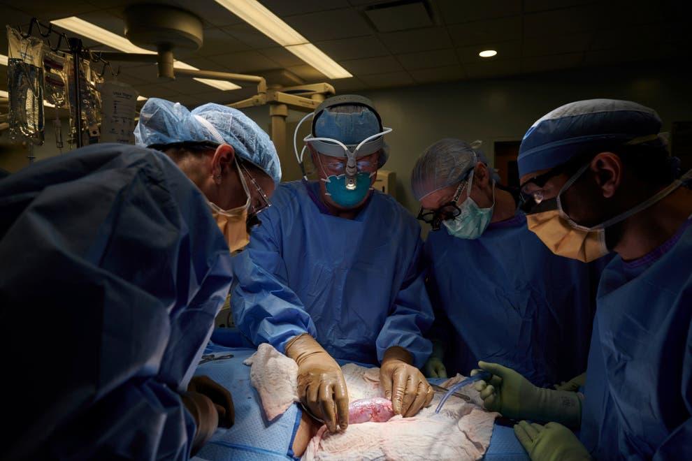 Unen temporalmente riñón de cerdo a cuerpo humano en NY