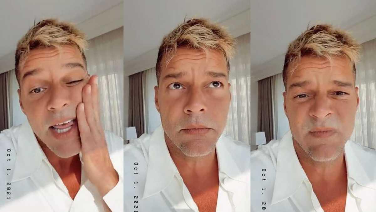 ¿Qué se hizo Ricky Martin en el rostro? El artista lo explica en este video