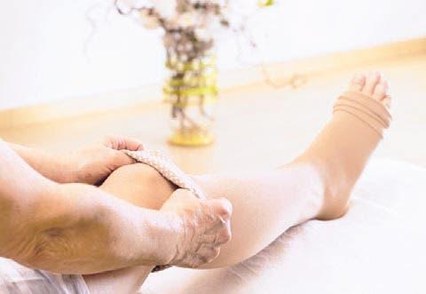 Salud Preventiva; Tratamiento del edema de miembros inferiores